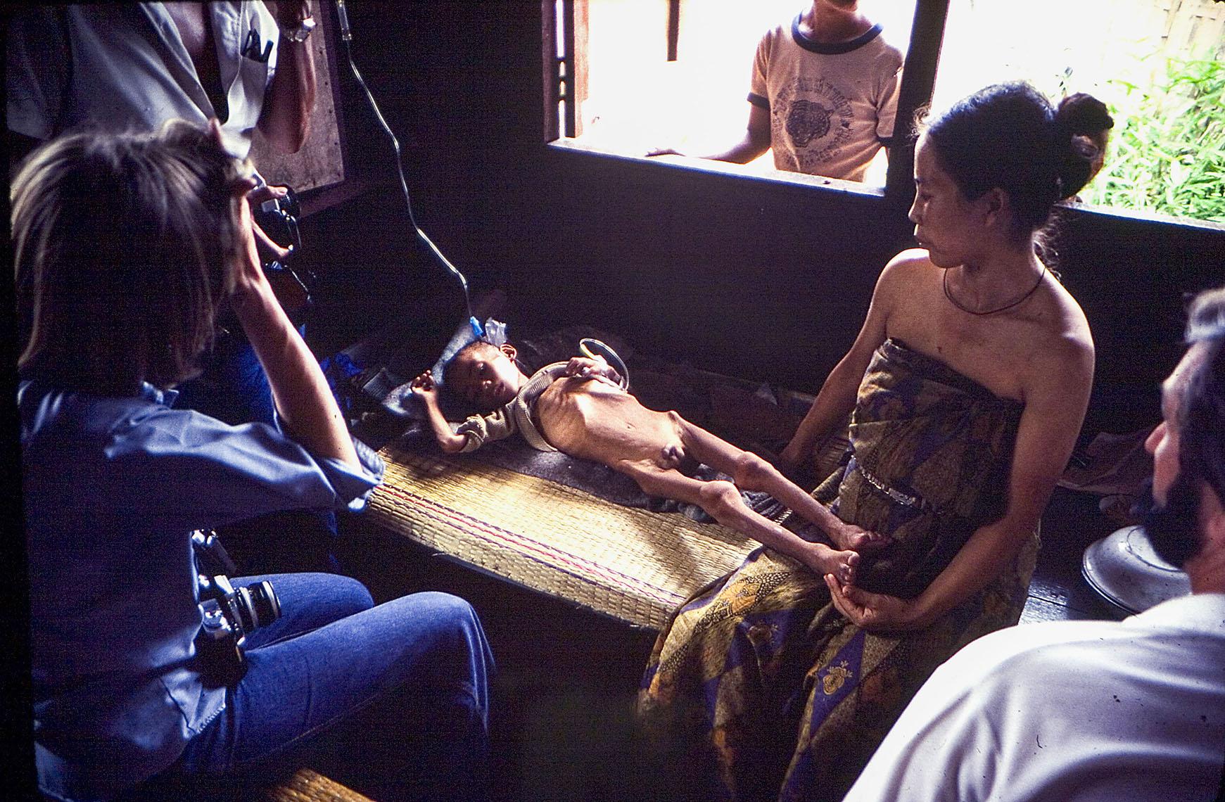 Starving child, Thai refugee camp, 1979.